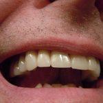 Ce qu'il faut savoir sur la prothèse dentaire en céramique