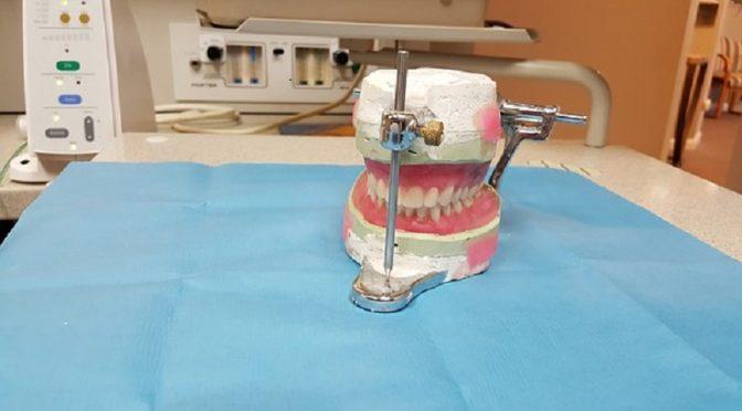 Prothèse dentaire fixe ou amovible, laquelle choisir ?